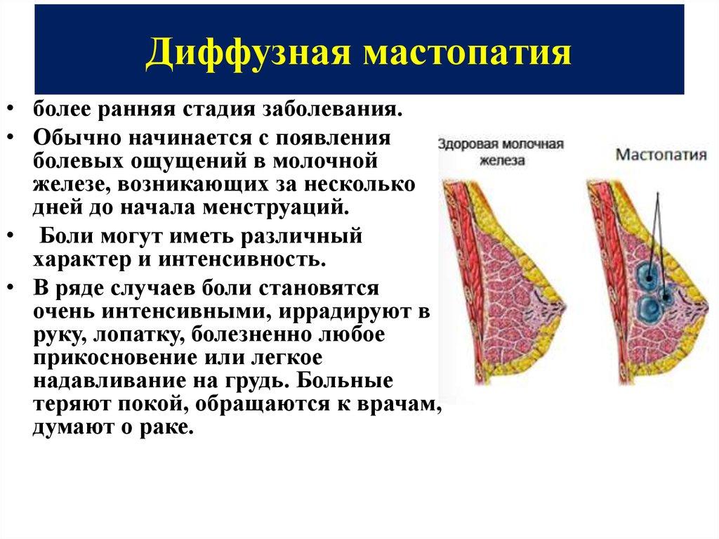 Мастопатия груди: лечение Женский Доктор