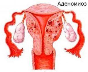 Аденомиоз у женщин